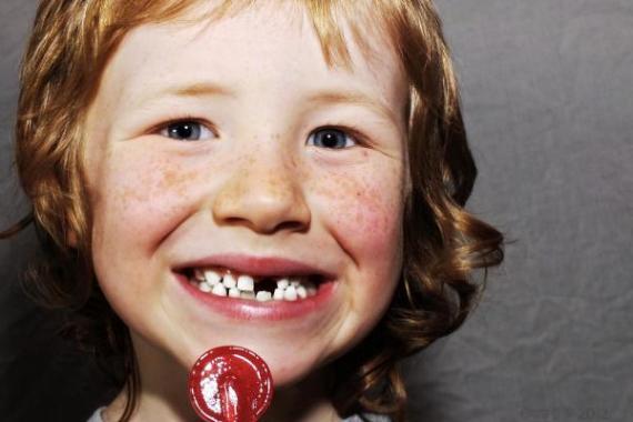 Angliában az öt év alatti gyermekek negyedének van szuvas foga