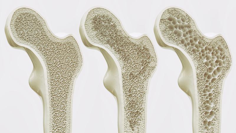 Október 20. A csontritkulás világnapja